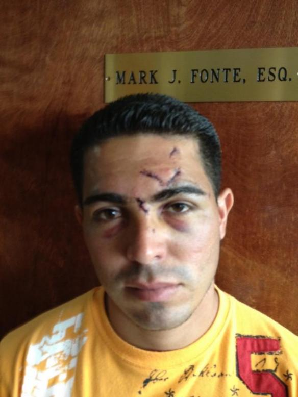 Luis Ortega after police beating